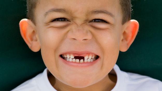 儿童换牙时期有哪些注意事项