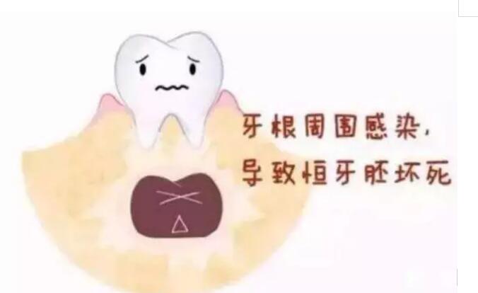 牙齿蛀牙了怎么处理